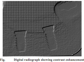 2221_What is Digital periapical radiography.png