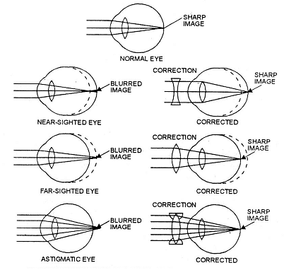 239_common eye defects.png