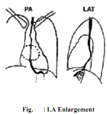394_Explain Left Atrial Enlargement.png
